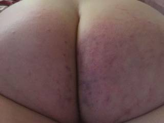 The Mrs.newly spanked butt...